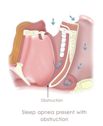 Sleep Apnea graphic showing obstruction